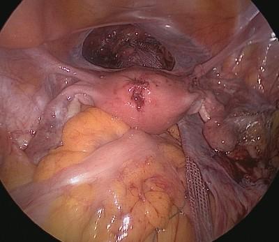 Site du Docteur Benoît VOGT, urologue : Prolapsus